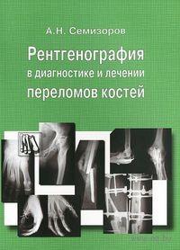 Рентгенография в диагностике и лечении переломов костей. Андрей Семизоров