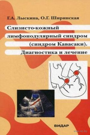 Слизисто-кожный лимфонодулярный синдром (Кавасаки). Г. Лыскина, О. Ширинская