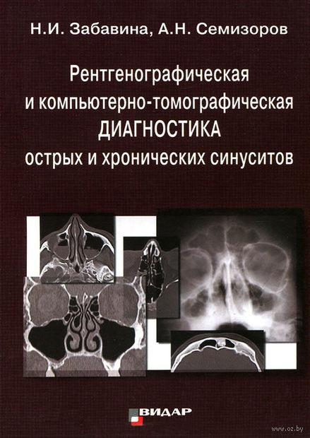Рентгенографическая и компьютерно-томографическая диагностика острых и хронических синуситов. Андрей Семизоров, Наталия Забавина