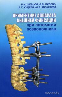 Применение аппарата внешней фиксации при патологии позвоночника. А. Худяев, С. Пивень, Ю. Муштаева